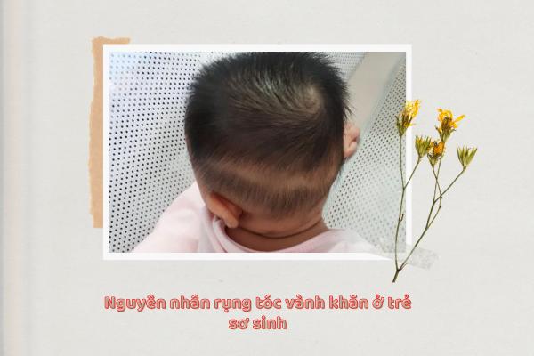 Cách chữa rụng tóc vành khăn ở trẻ, Hình ảnh rụng tóc vành khăn, Bé 2 tuổi rụng tóc vành khăn, Bé 15 tháng rụng tóc hình vành khăn, Hình ảnh trẻ rụng tóc hình vành khăn, Rụng tóc ở trẻ sơ sinh, Tóc vành khăn ở trẻ sơ sinh